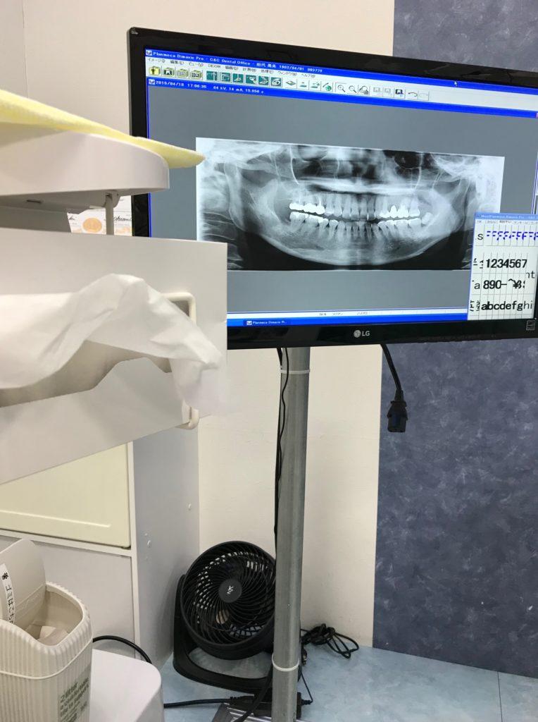 私の歯レントゲン